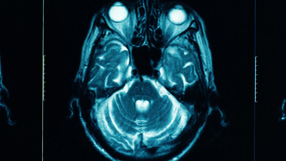 эпилепсия, имплантат, Нейронный имплантат, предсказывающий приступ эпилепсии