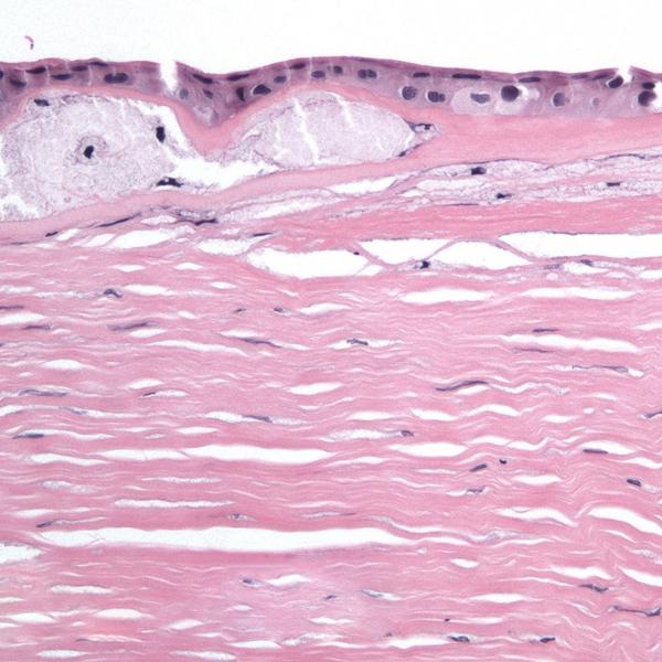 Медицина, офтальмология, роговица, слой Дуа, Обнаружен шестой слой в роговице глаза