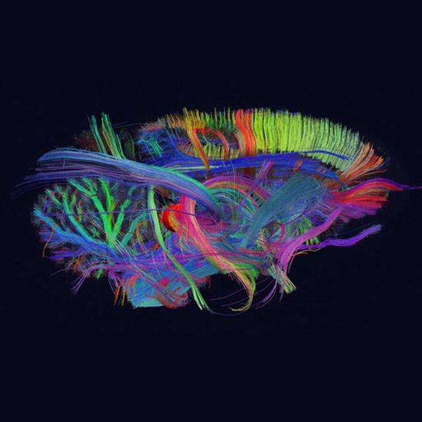 BigBrain, мозг, big data, анатомия, Весь человеческий мозг на 3D-карте
