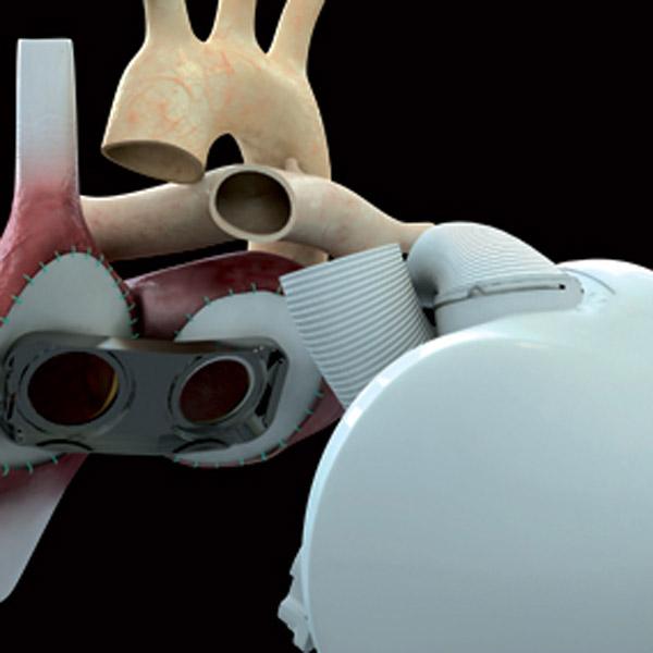 искусственное сердце, имплант, трансплантация, carmat, Бычья сила искусственного сердца