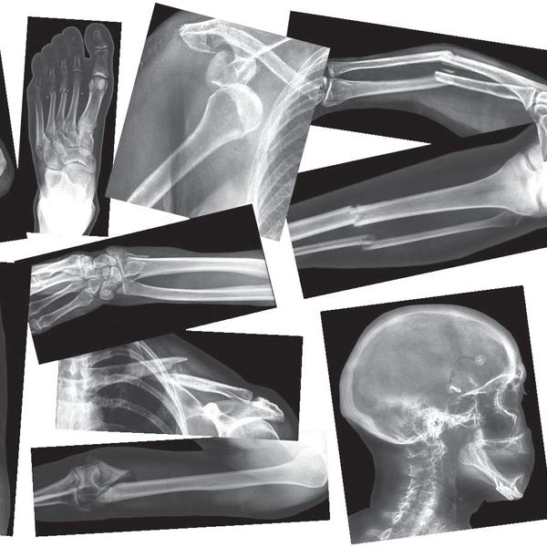 рентген, Австралийские ученые создали супер-рентген