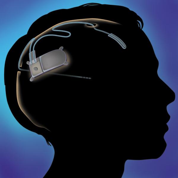 NeuroPace,имплант, Создан имплантат для контроля работы головного мозга