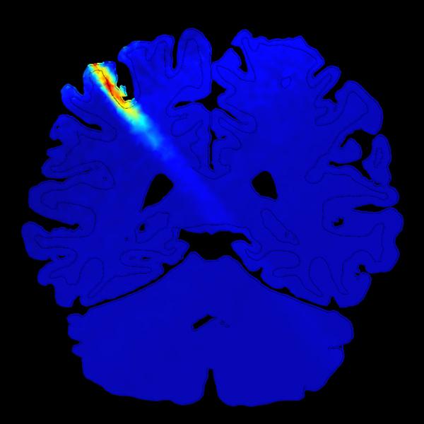 мозг, чувства, эксперимент, Ультразвук способен повышать чувствительность человека