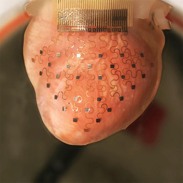 3D-принтер, медицина, сердце, Разработана специальная мембрана, благодаря которой сердце может биться вечно