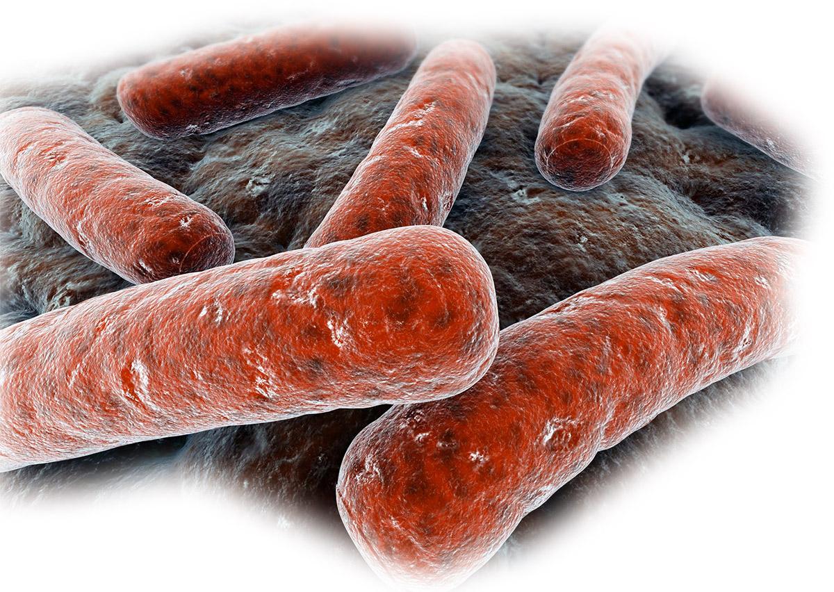 quarantining of tuberculosis essay