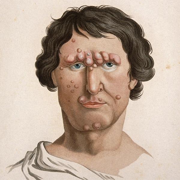 Медицина, иллюстрации, Пугающие медицинские иллюстрации 19 века