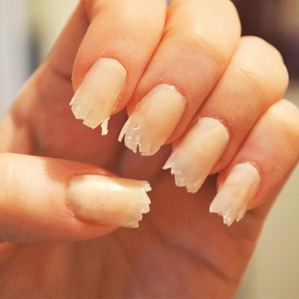 Ногти медицина болезни что могут