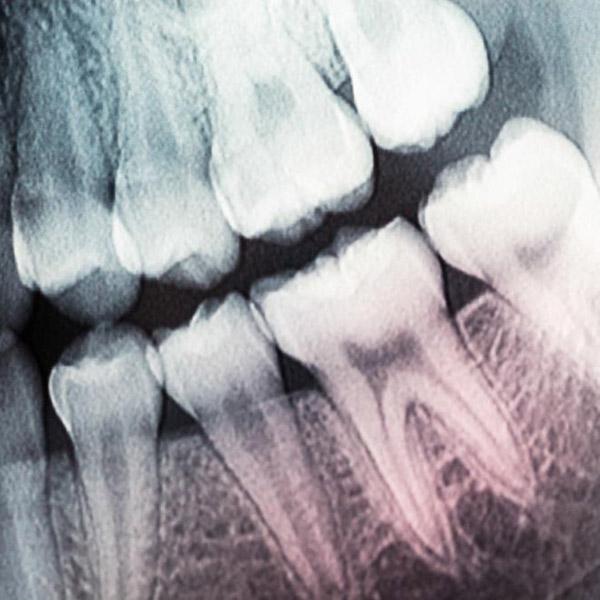 медицина,регенерация, Лазерное выращивание зубов